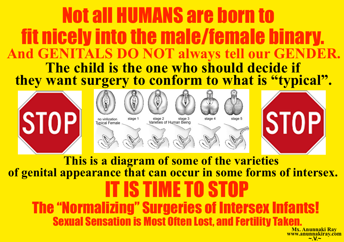 """It is time to stop the """"normalizing"""" genital surgery on intersex ..."""