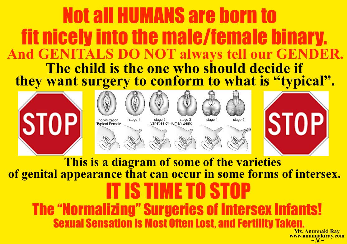 Intersexual genital pictures